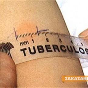 Преглеждат безплатно за туберкулоза